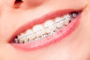 Full Orthodontics treatment for south Auckland  Get a full