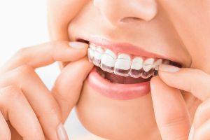 Dentist alignment